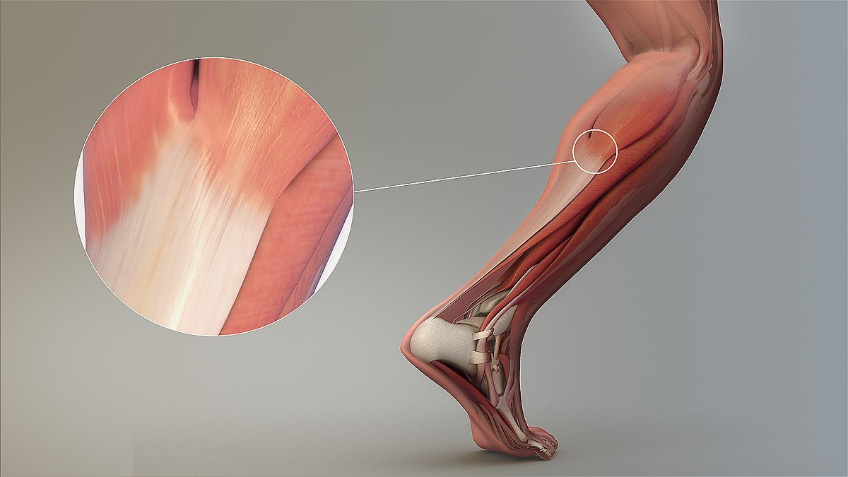 tendinopatia